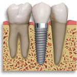 fogaszati_implantatum