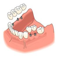 Korona és hídpótlás implantátumon