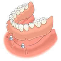 Implantátumon rögzített fogsor