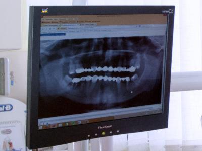 Panoráma röntgen a pontos diagnózisért