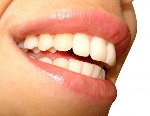 smile-1431565-1599x1242