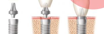 Beszélgetés a fogászati implantátumokról