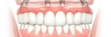 Rögzített fogpótlás azonnal, All-on-4™ implantáció
