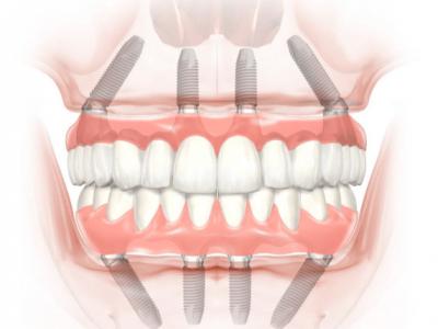 Implantáció? 4 tévhit a fogbeültetésről