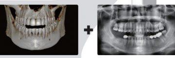 CT és röntgen felvételek